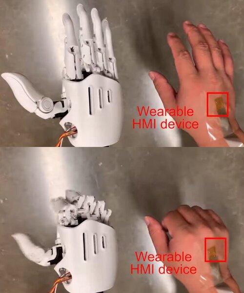 伸縮性のある電子パッチを皮膚に貼ってロボットハンドを制御する技術